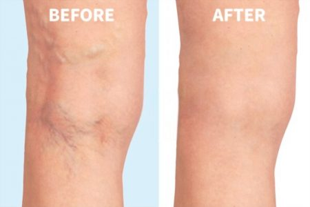 spider veins, before and after